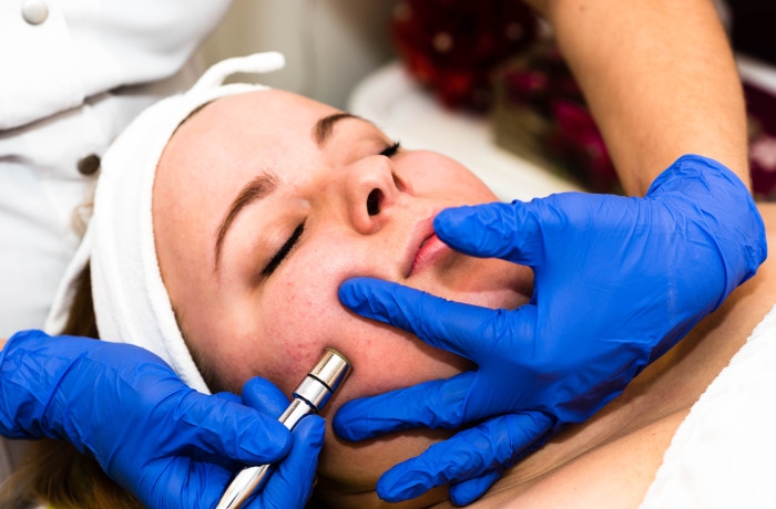 DermaPen MezoPen kezelés